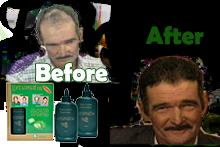 Com Healthcarefree Ervamatin Shampoo
